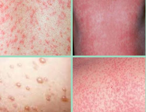 Elma'nın Döküntülü Hastalıkları